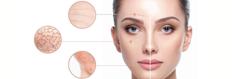 Problèmes de peaux